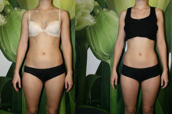 Фото до и после английской диеты
