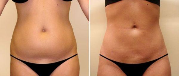 Фотот до и после процедуры липолиза