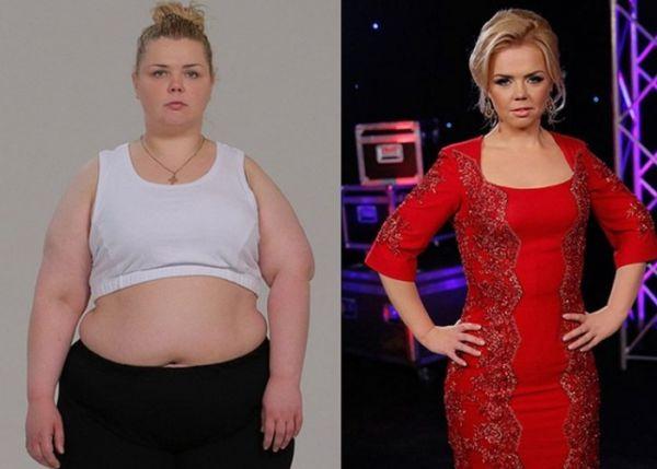 Фото до и после употребления Турбослим